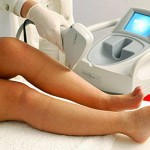 Choisir un centre et médecin pour une épilation laser